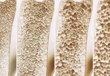 20 de outubro, Dia Mundial de Alerta para Osteoporose